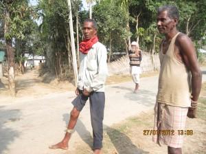 Putul Bauri showing his swollen legs (left).